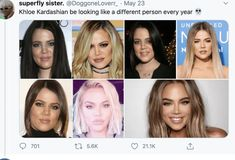 Celebrity Cosmetic Surgery. Trying to Keep up With Khloé Kardashian - Best Cosmetic Surgeons Robert Kardashian, Khloe Kardashian, Perfect Image, Perfect Photo, Love Photos, Cool Pictures, Best Farm Dogs, Facial Procedure, Free Facebook Likes
