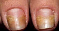 Aceasta este crema naturala care vindeca rapid infectiile unghiilor! Iata cum o prepari!