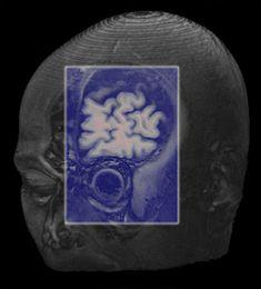 http://neuroantropologia.wordpress.com/2013/03/14/prospettive-neandertaliane/