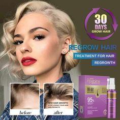 Hair Growth Essence Oil Spray Fast Hair Growth Natural Anti Hair Loss Treatment Hair Solution Hair Care Products Hair Tonic