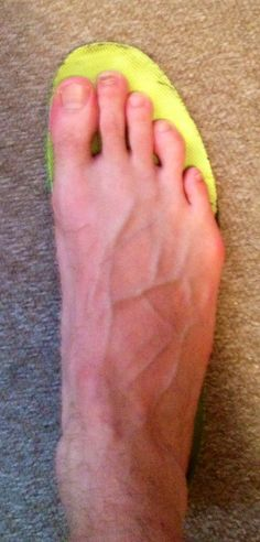 Blisters - treatment and prevention