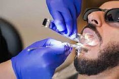 Experiencing a dental emergency that can't wait? Our emergency dentists are available for convenient same-day emergency dental services in Houston Tx. Easily Book Online! Dentist Near Me, Best Dentist, Emergency Dental Care, Dental Fillings, Dentist Appointment, Dental Insurance, Dental Problems, Dental Services