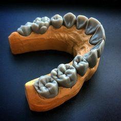 Dental Anatomy, Dental Technician, Waves Wallpaper, Dental Art, Love Tattoos, Dentistry, Teeth, Smile, Design