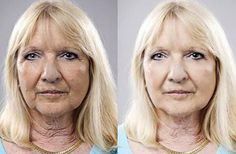 Prevention Daily   4 New Skin Fixes   Anti-aging Tips