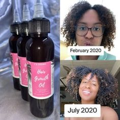 Super Hair Growth Serum with Saw Palmetto, Biotin, and Hyaluronic Acid for Unisex Hair Loss Treatments