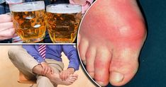 Gout In Big Toe Diagnosis-Natural Treatment For Gout In Toe Signs Of Gout, Signs And Symptoms, Natural Treatments, How To Cure Gout, Gout Diet, Uric Acid, Our Body, Alcohol