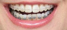 Clear ceramic braces may be a great alternative to traditional metal brackets...come in today for a consultation: 01424 424847