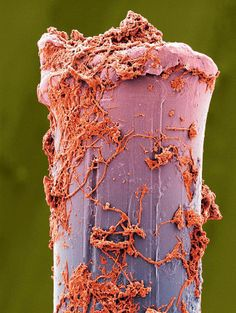 It's a false colored, scanning electron microscope image of a toothbrush bristle.You heard me. That stringy stuff covering it? That would be plaque