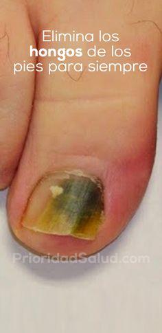 Este remedio te hará olvidar de los hongos en las uñas de tus pies. Es bastante sencillo de preparar y totalmente natural y efectivo contra los hongos en los pies. Pruébalo.