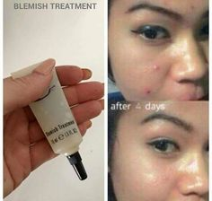Do you get bothered by troublesome breakouts? Do you struggle with the temptation of popping those spots that make-up wont cover up?? Well now you can kiss those papules and pustules goodbye with our amazing blemish treatment leaving your skin clear and youthful without any scarring or marks!!!