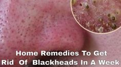 How To Remove Tons Of Blackheads  Instantly -- Home Remedies To Get  Rid...