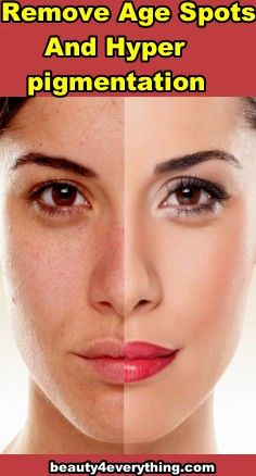 What Is Hyperpigmentation The Skin Gets Its Color From A Pigment