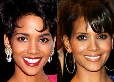 1000 Images About Celebrity Surgery Gone Right On