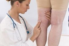 I 9 diuretici naturali più potenti contro la ritenzione idrica