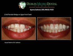 Boiling Dental Bridge It Works Implant Dentistry, Cosmetic Dentistry, Teeth Implants, Dental Implants, Dental Bridge Cost, Affordable Dental, Dental Laboratory, Dental Cosmetics, Dental Crowns