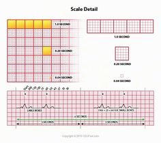 This ECG Interpretation course will show how to identify normal versus abnormal cardiac anatomy, cardiac cycle and electrical conduction through the heart. Nursing Ceu, Cardiac Nursing, Nursing Degree, Nursing Tips, Nursing Notes, Nursing Programs, Lpn Programs, Certificate Programs, Ekg Leads
