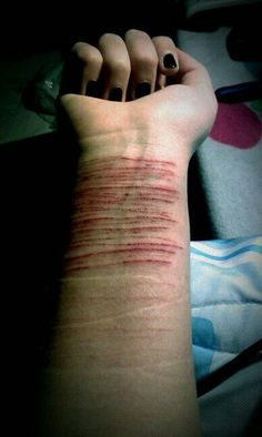 I looovve the new cuts mixed with the old scars. You can tell they've been going at it for a while <3