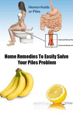 Home Remedies To Easily Solve Your Piles Problem