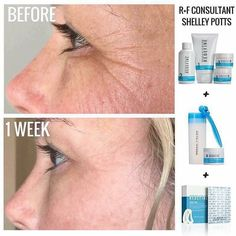 REDEFINE AMP It Up w FREE Acute Care @ MY consultant price when you purchase as my Preferred Customer by 7/31/16!   ginaowenby.myrandf.com/Shop/Promotions