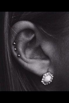 Tripla cartilage