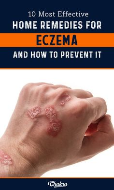 Best home remedies for Eczema and how to prevent it completely. Eczema Causes, Eczema Symptoms, Home Remedies For Eczema, Dry Skin Remedies, How To Treat Eczema, Anti Itch Cream, Cleaning Tips, Home Remedies, Natural Remedies