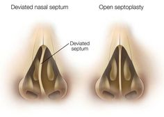 Rhinoplasty Toronto Cosmetic Plastic Surgery Procedures | SpaMedica