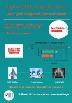 Espondilitis Anquilosante   Unidad de Artritis y Reumatismo
