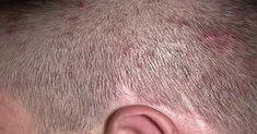 Saç Derisindeki Sivilcelerin Nedenleri Birçok kişinin problemi olan saç derisindeki sivilcelerin nedenleri çok çeşitli olabilir. Bu durum görsel olarak ciddi sorunlara neden olabilse de genelde geçici olarak da problem haline gelebilir. Yüz ve vücuttaki yağlanma nedeniyle ortaya çıkabilen akne sorunu çoğu zaman saç mantarları ile karıştırılabilir. Saç mantarları yayılıp enfeksiyonlara neden olabilir. Bu yüzden kısa …