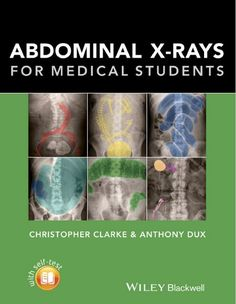 Abdominal X-Rays for Medical Students - 1st edition --- mebooksfree.com