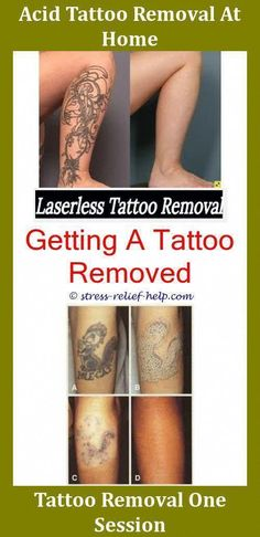 13 best Tattoo Removal Prices images | Tattoo removal prices ...