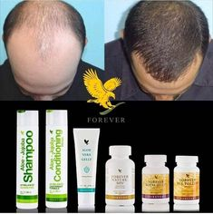 Forever Living is the world's largest grower, manufacturer and distributor of Aloe Vera. Discover Forever Living Products and learn more about becoming a forever business owner here. Forever Living Aloe Vera, Forever Aloe, Natural Hair Treatments, Skin Treatments, Aloe Barbadensis Miller, Cellulite, Sante Bio, Clean9, Hair Boost
