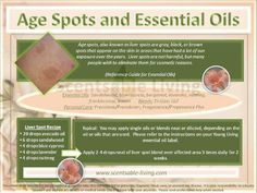 Remove Age Spots & Liver Spots with Young Living Essential Oils Www.Theoildropper.Com