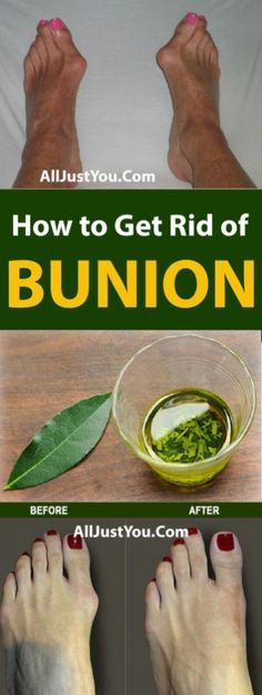 Get Rid of Bunions Naturally With This Simple But Powerful Remedy - #health #fitness #beauty #bunion #bone #rid #foot