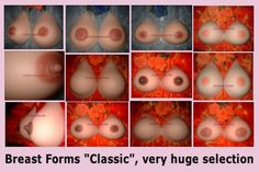 Forms adhesives breast