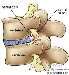 Herniated disc. This image helps to understand the importance of alignment of the spine.