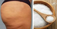 Many people are trying to lose weight in order to lose cellulite. While it is possible to reduce cellulite while you are trying to lose fat the extent of i Cellulite Wrap, Cellulite Scrub, Anti Cellulite, Psoriasis Symptoms, Psoriasis Cure, Cellulite Exercises, Cellulite Remedies, Cellulite Workout, Best Anti Aging Creams