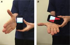[Abstract] Self-measured wrist range of motion by wrist-injured and wrist-healthy study participants using a built-in iPhone feature as compared with a universal goniometer