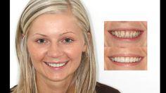 Teeth whitening & porcelain veneers. Cosmetic dentistry by Dr. Mike Maroon of Advanced Dental in Berlin, CT.