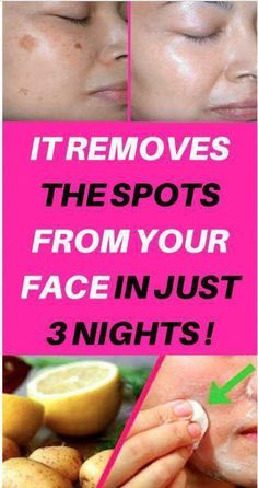 You'll certainly knock out your age spots. Age spots can occasionally be rough in texture. They are caused by prolonged sun exposure. They are sometimes called liver spots. Sun Spots On Skin, Black Spots On Face, Brown Spots On Hands, Spots On Legs, Dark Spots, How To Get Rid, How To Remove, Sunspots On Face, Baking Soda Shampoo