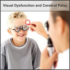 Visual Dysfunction and Cerebral Palsy, got the diplegia and had strabismus