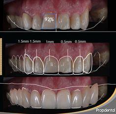 Digital Smile Design | Diseño Digital de Sonrisa
