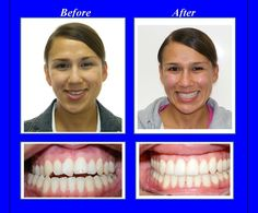 This woman had a severe malocclusion with a narrow upper jaw, an openbite in the front and a significant facial asymmetry. We fixed her bite with a combination of braces and surgery.