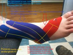 Lateral ankle - Peroneus longus KT tape. Perfect for my peroneal tendon subluxation!