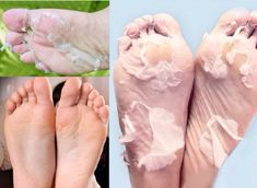 Skin So Soft, Natural Skin, Loose Skin, Foot Peel, Clear Skin Tips, Soft Feet, Tips & Tricks, Face Skin Care, Ingrown Hair
