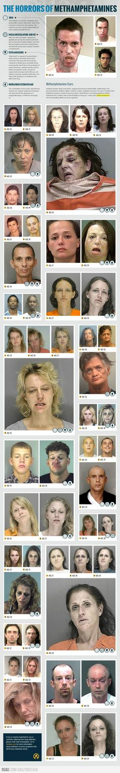 And this is why you don't do meth. O_o