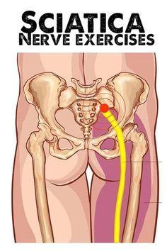 Sciatic Nerve Exercises, Sciatica Stretches, Sciatica Pain Relief, Sciatic Pain, Back Pain Exercises, Hip Stretching Exercises, Hip Pain Relief, Hip Flexor Exercises, Sciatica Symptoms