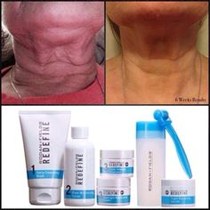 Wow, check out the Amazing Results in just 6 weeks using the Redefine Regimen and Amp MD roller. No more saggy flappy neck. Let's get you rolling today! Message me for more info Chrissy Thompson 540-980-0909 www.radiantimages.myrandf.com