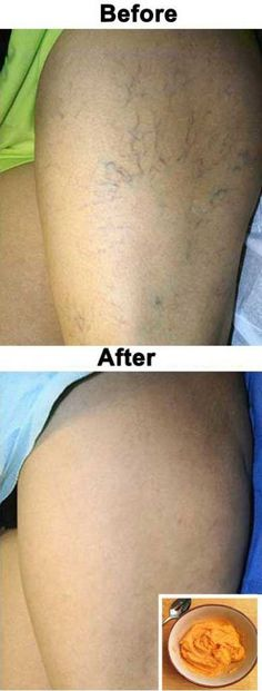 The Most Effective Natural Treatment For Varicose Veins! #Veins