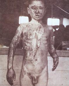 this just makes my soul hurt Creepy Old Photos, Creepy Images, Nagasaki, Hiroshima, Japan Nuclear, Chernobyl Disaster, Horrible Histories, Nuclear Disasters, Japanese History