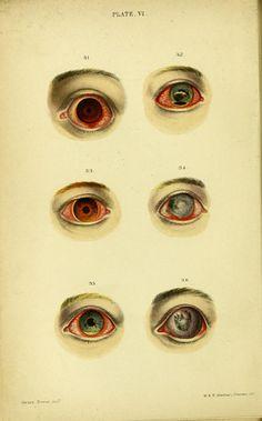 Plate VI. Fig 31. Catarrho-rheumatic ophtalmia in a boy aet 16. Fig 32… 1867.